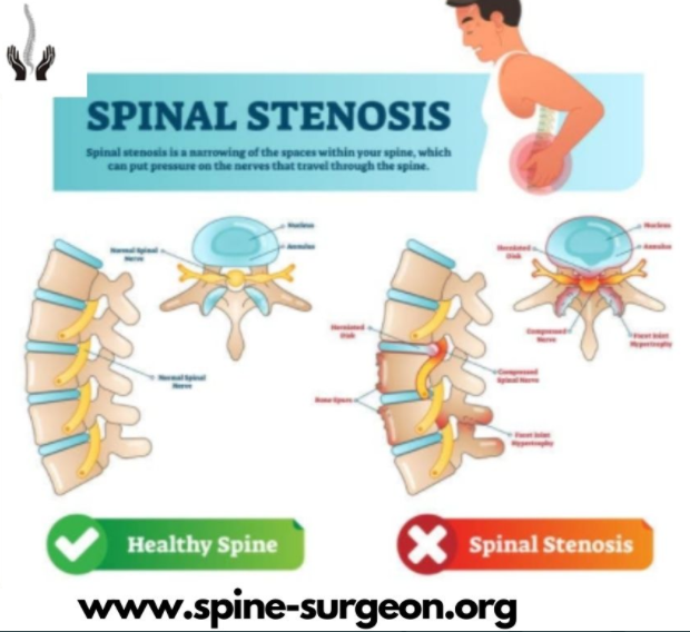 Spine Stenosis – a major problem for the people